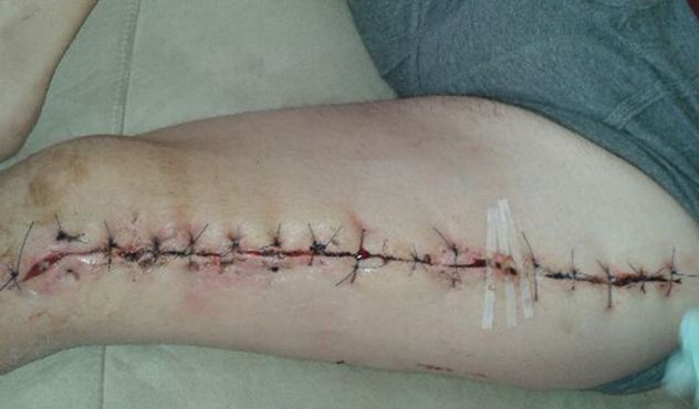 False Widow Spider Leg Wound